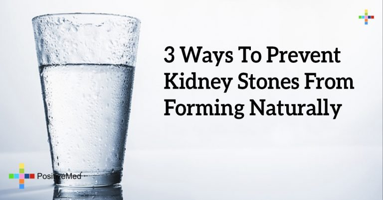 3 Ways To Prevent Kidney Stones From Forming Naturally