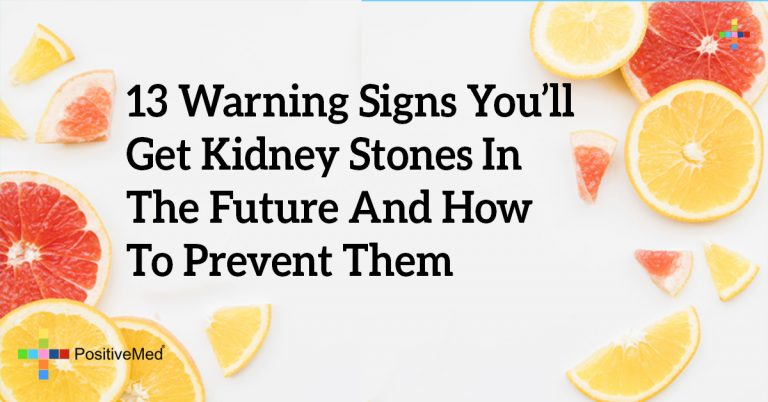 13 Warning Signs You'll Get Kidney Stones In The Future And How To Prevent Them