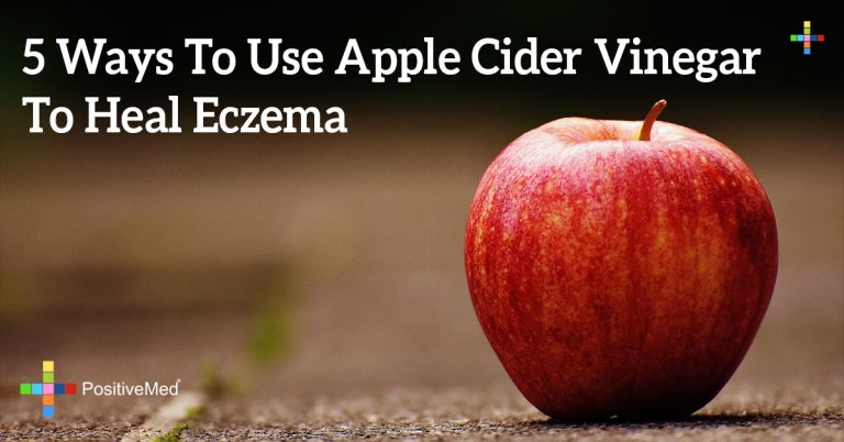 5 Ways To Use Apple Cider Vinegar To Heal Eczema