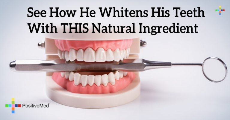 See How He Whitens His Teeth With THIS Natural Ingredient