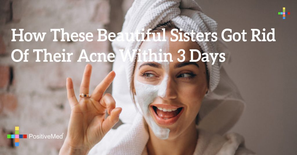 How These Beautiful Sisters Got Rid Of Their Acne Within 3 Days