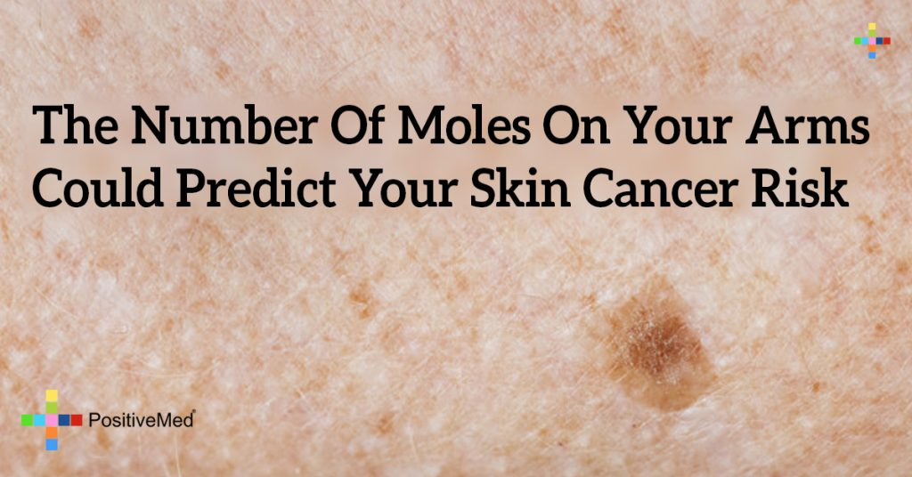 The Number Of Moles On Your Arms Could Predict Your Skin Cancer Risk