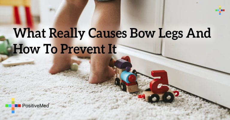 What Really Causes Bow Legs And How To Prevent It