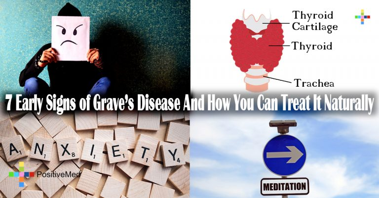 7 Early Signs of Grave's Disease And How You Can Treat It Naturally