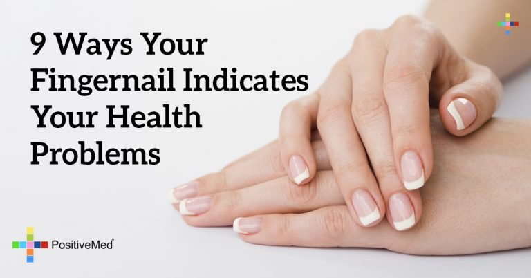 9 Ways Your Fingernail Indicates Your Health Problems