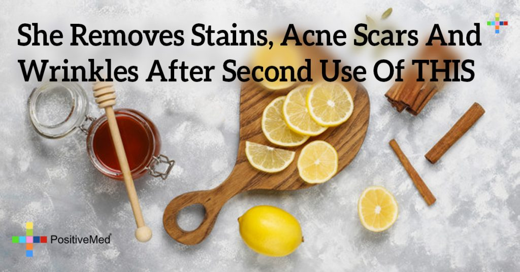 She Removes Stains, Acne Scars And Wrinkles After Second Use Of THIS