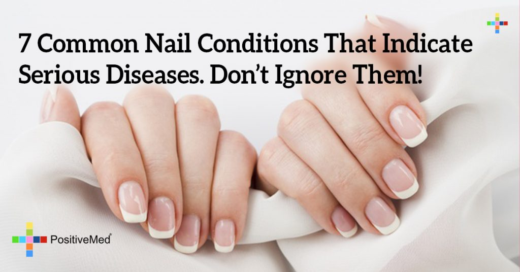 7 Common Nail Conditions That Indicate Serious Diseases. Don't Ignore Them!