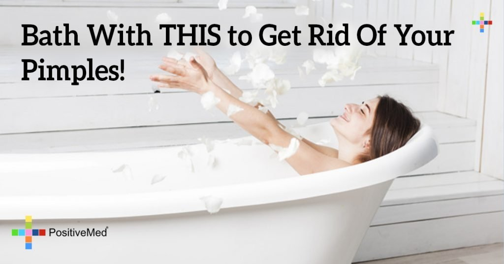 Bath With THIS to Get Rid Of Your Pimples!