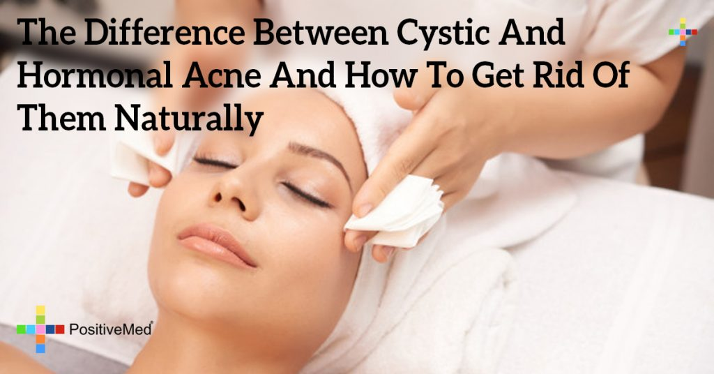 The Difference Between Cystic And Hormonal Acne And How To Get Rid Of Them Naturally