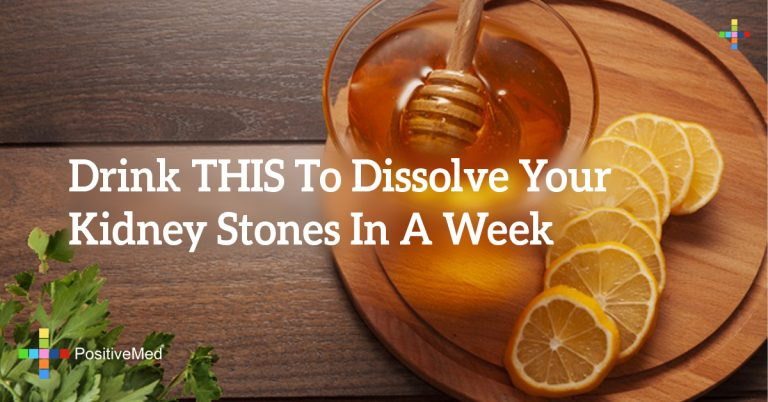 Drink THIS To Dissolve Your Kidney Stones In A Week