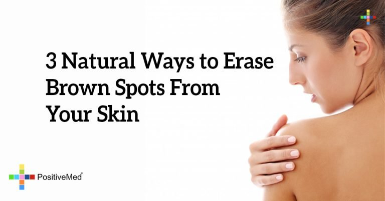 3 Natural Ways to Erase Brown Spots From Your Skin