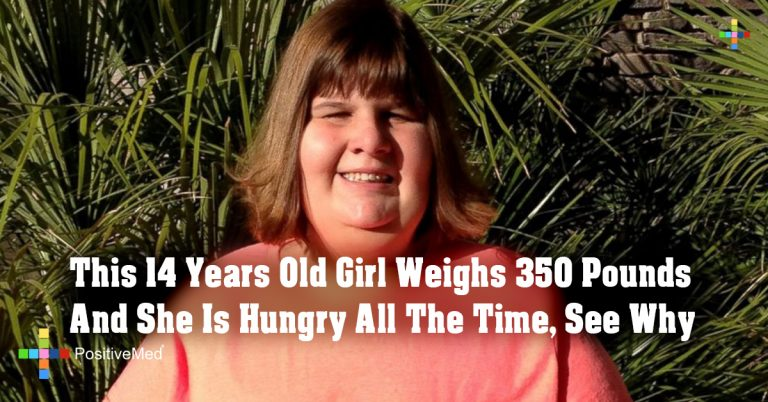 This 14 Years Old Girl Weighs 350 Pounds And She Is Hungry All The Time, See Why
