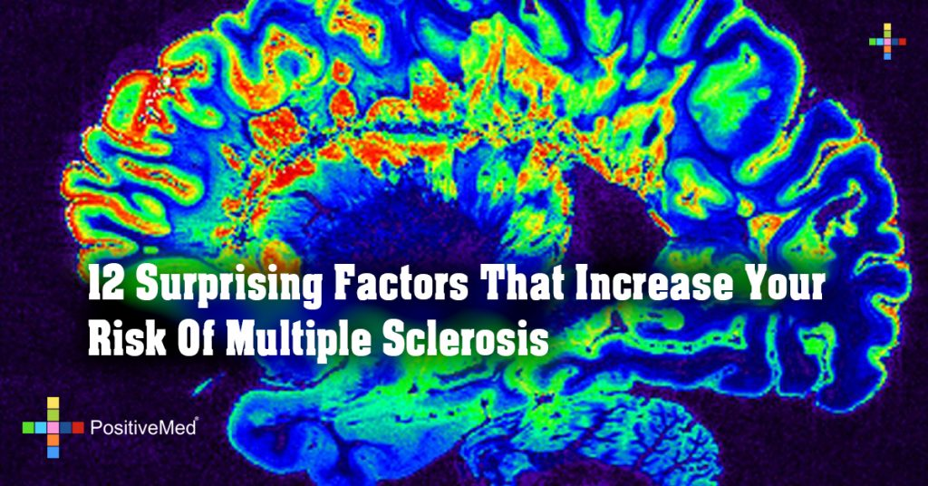 12 Surprising Factors That Increase Your Risk Of Multiple Sclerosis