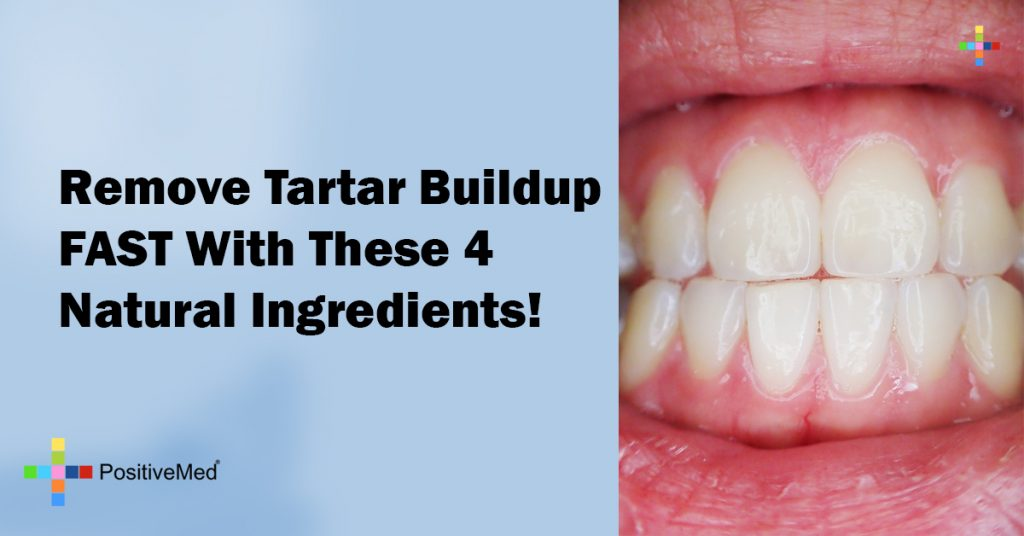 Remove Tartar Buildup FAST With These 4 Natural Ingredients!
