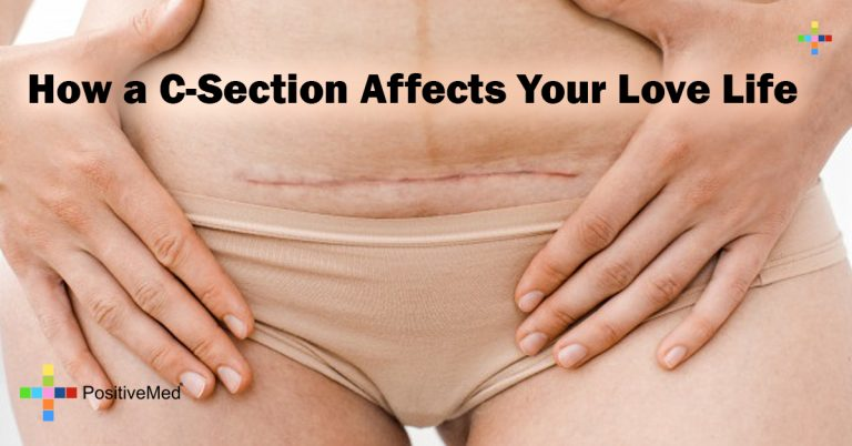 How a C-Section Affects Your Love Life