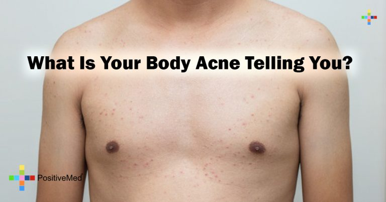 What Is Your Body Acne Telling You?
