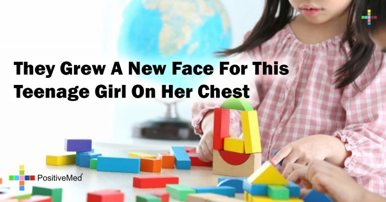 They Grew A New Face For This Teenage Girl On Her Chest