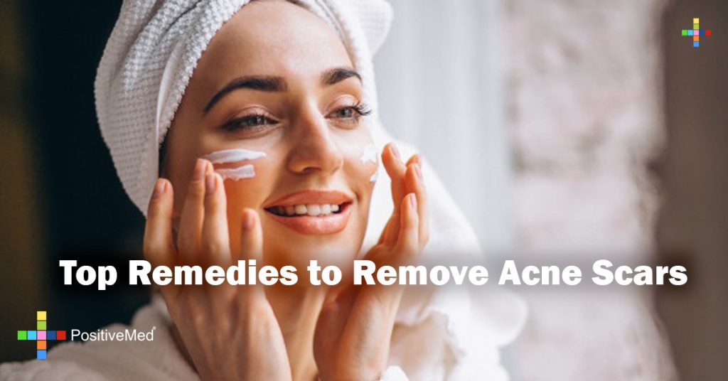 Top Remedies to Remove Acne Scars