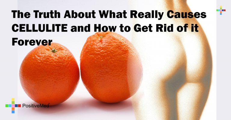 The Truth About What Really Causes CELLULITE and How to Get Rid of it Forever