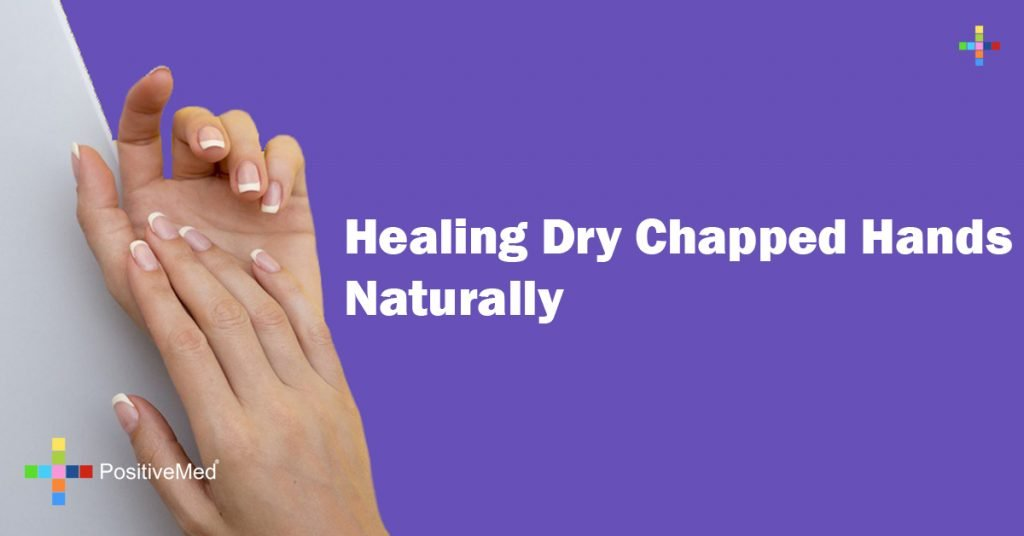 Healing Dry Chapped Hands Naturally