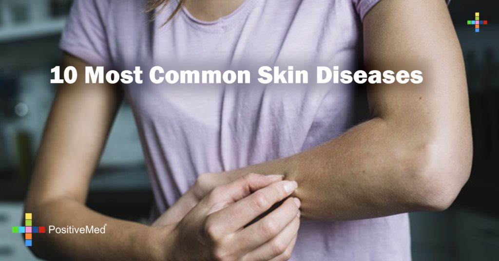 10 Most Common Skin Diseases