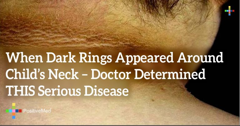 When Dark Rings Appeared Around Child's Neck – Doctor Determined THIS Serious Disease