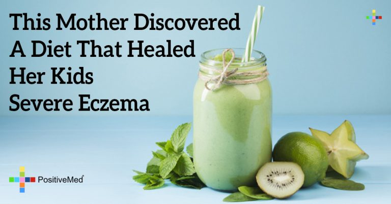 This Mother Discovered A Diet That Healed Her Kids Severe Eczema