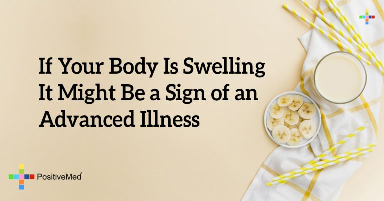 If Your Body Is Swelling It Might Be a Sign of an Advanced Illness