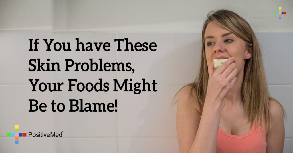 If You have These Skin Problems, Your Foods Might Be to Blame!
