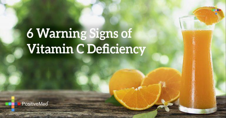 6 Warning Signs of Vitamin C Deficiency
