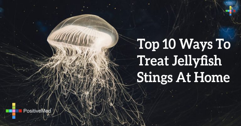 Top 10 Ways To Treat Jellyfish Stings At Home