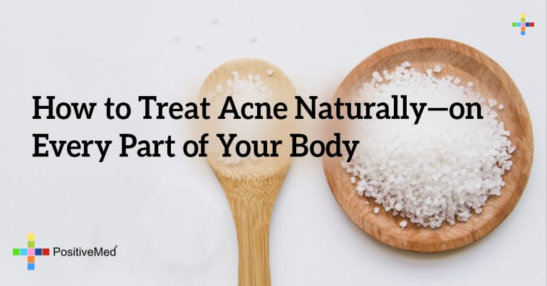 How to Treat Acne Naturally—on Every Part of Your Body
