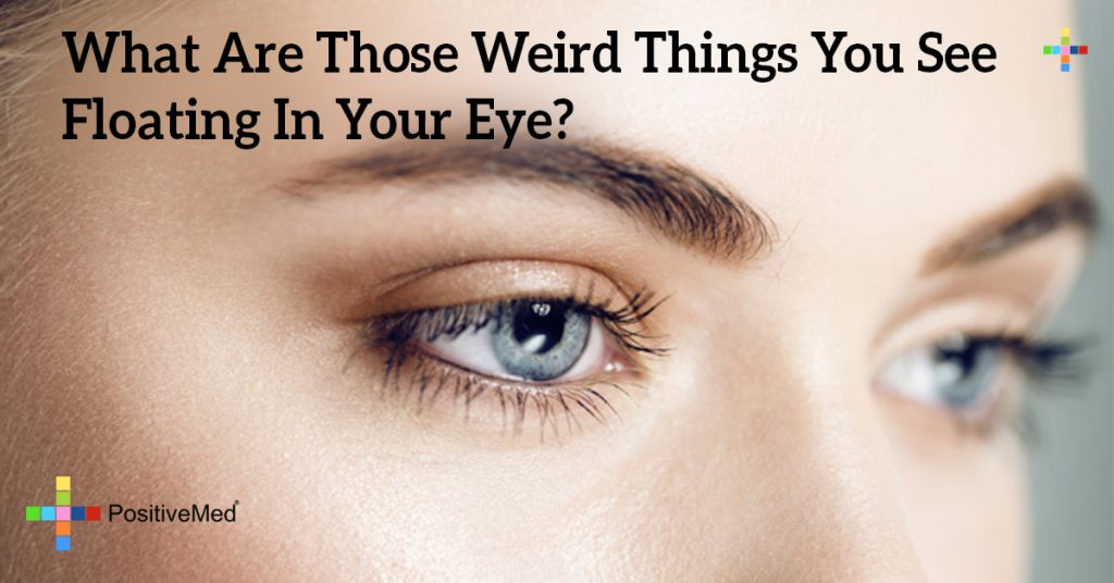 What Are Those Weird Things You See Floating In Your Eye?