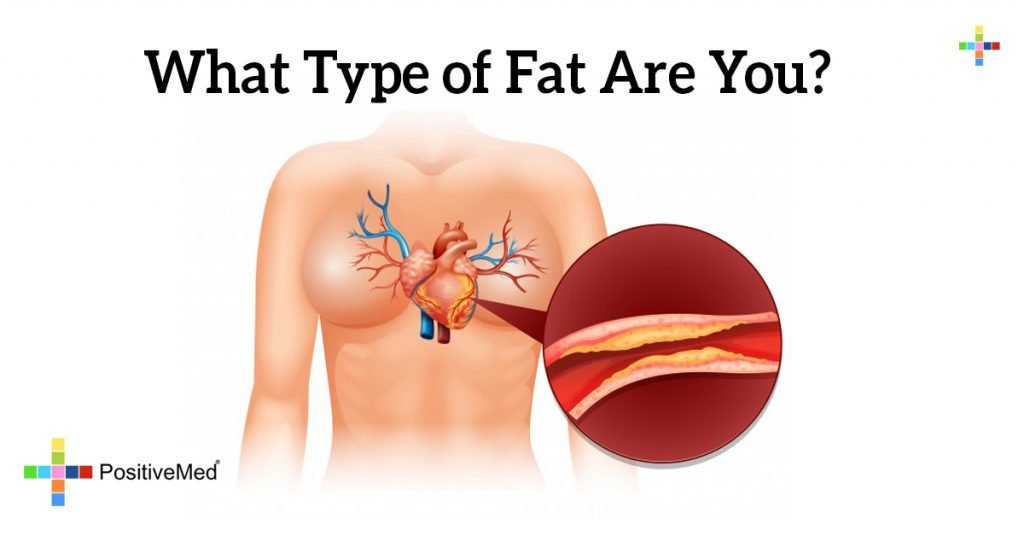 What Type of Fat Are You?