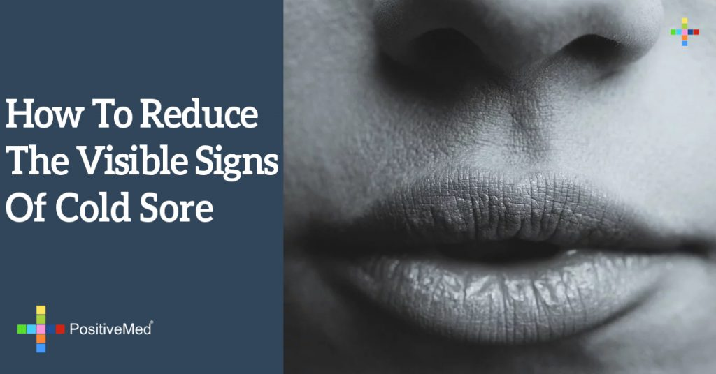 How To Reduce The Visible Signs Of Cold Sore