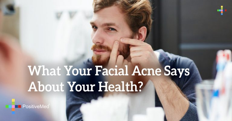 What Your Facial Acne Says About Your Health?