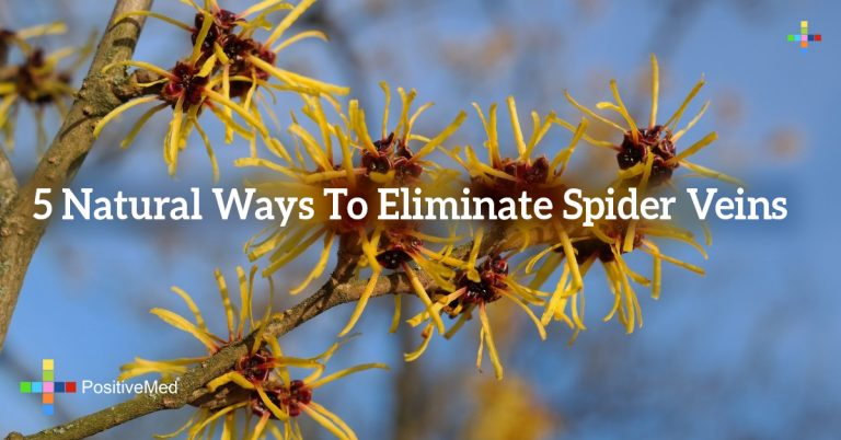 5 Natural Ways To Eliminate Spider Veins