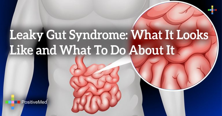 Leaky Gut Syndrome: What It Looks Like and What To Do About It