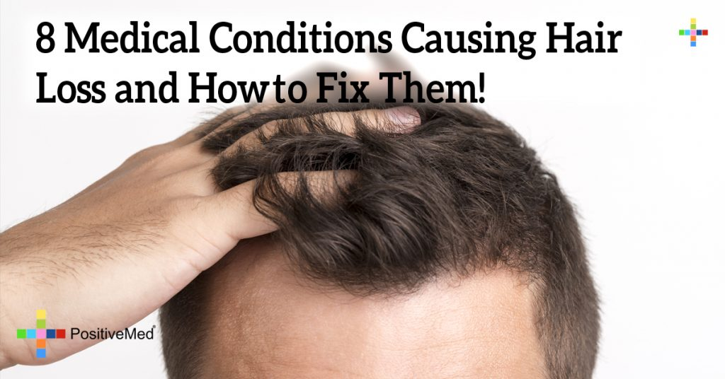 8 Medical Conditions Causing Hair Loss and Howto Fix Them!