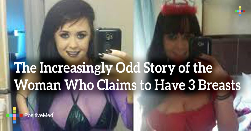 The Increasingly Odd Story of the Woman Who Claims to Have 3 Breasts
