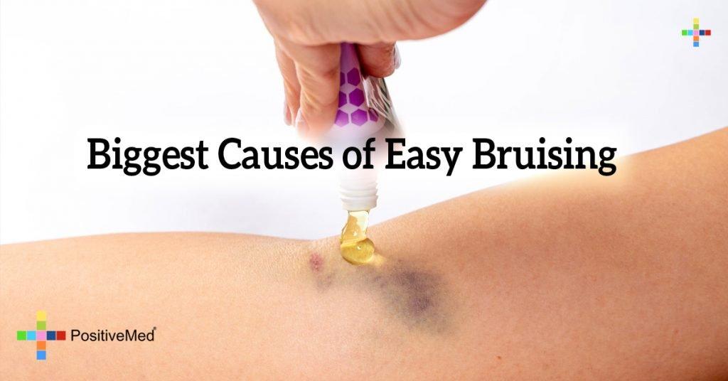 Biggest Causes of Easy Bruising