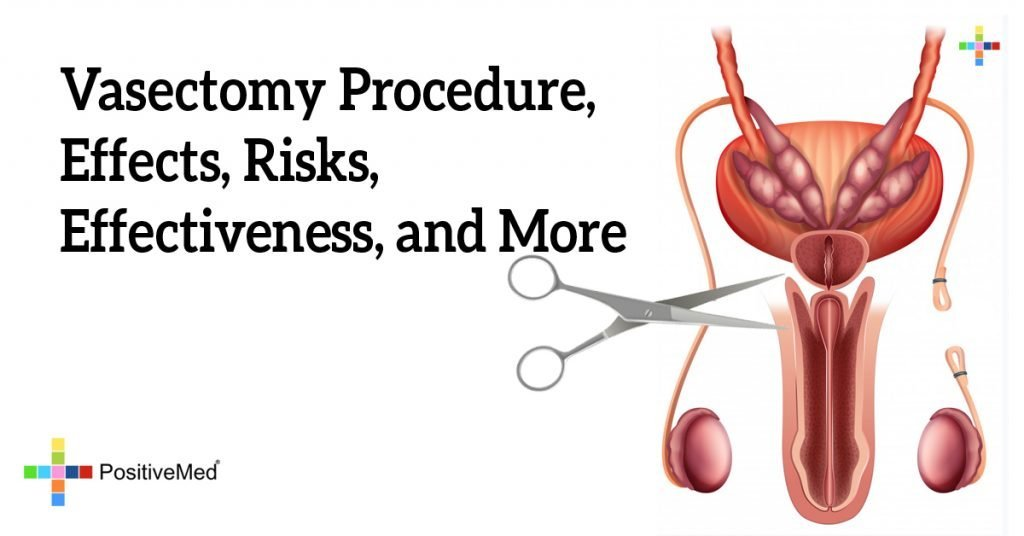 Vasectomy Procedure, Effects, Risks, Effectiveness, and More