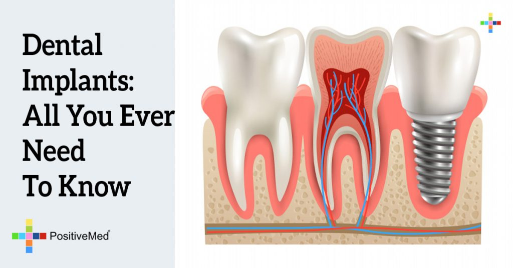 Dental Implants: All You Ever Need To Know