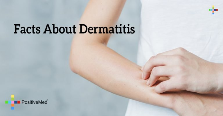 Facts About Dermatitis