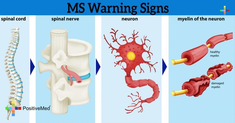 MS Warning Signs