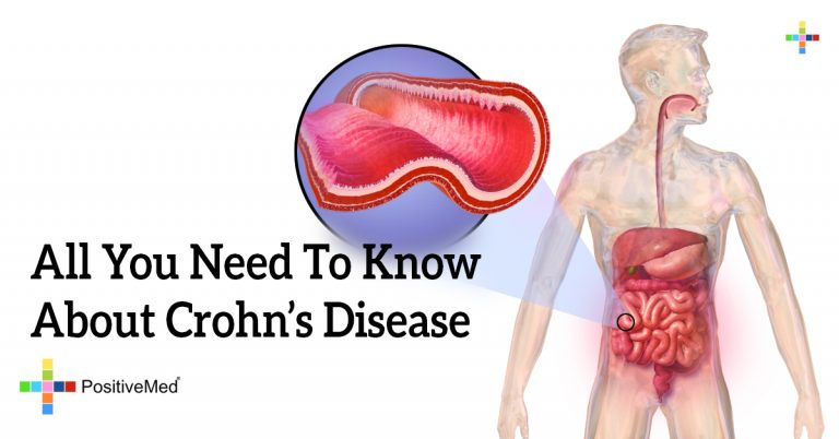 All You Need To Know About Crohn's Disease