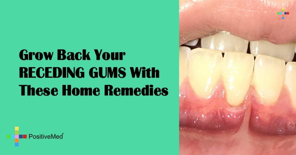 3 Natural Ways To Grow Back Your Receding Gums
