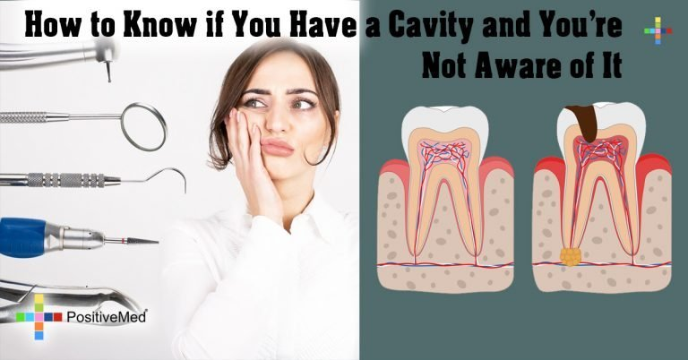 How to Know if You Have a Cavity and You're Not Aware of It