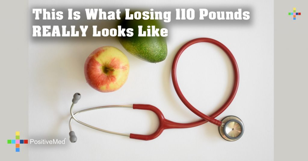 This Is What Losing 110 Pounds REALLY Looks Like