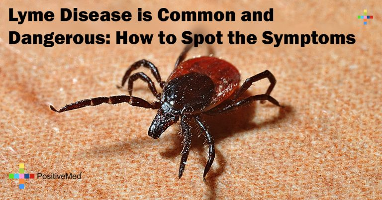 Lyme Disease is Common and Dangerous: How to Spot the Symptoms
